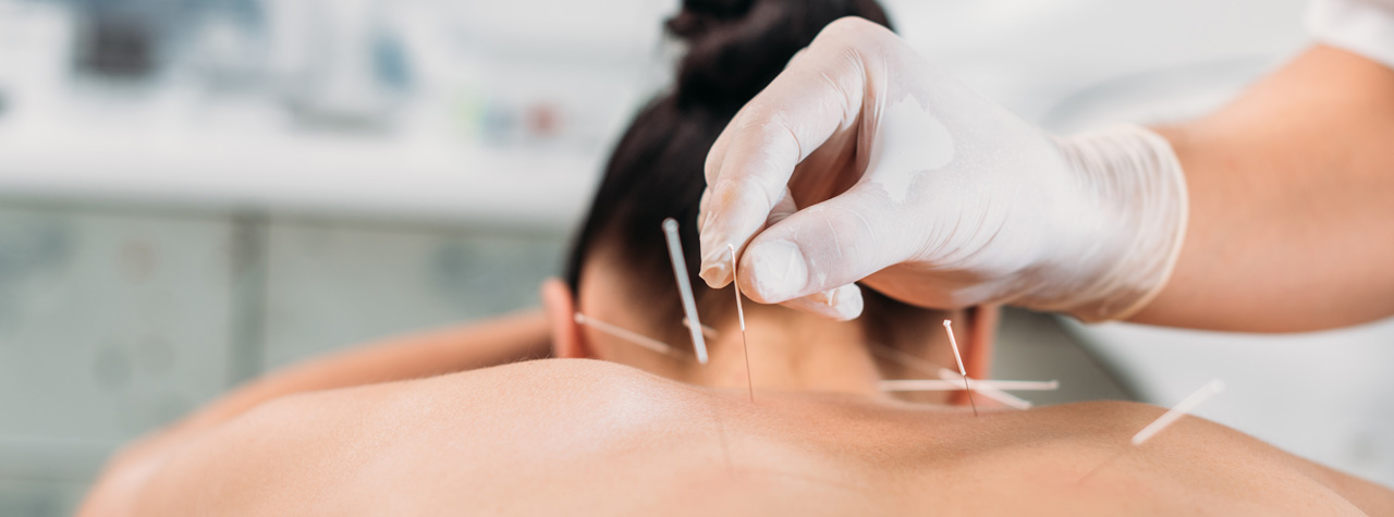 Evolvewell ACUPUNCTURE